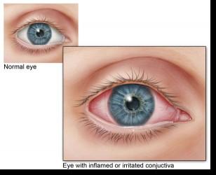 oorzaak rode ogen