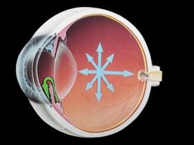 oorzaak de oorzaak van glaucoom is nog onbekend wel is: www.optiekvanderlinden.be/oogaandoeningen/glaucoom.html